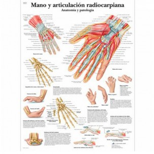 Foil of hand and wrist volar radiocarpal dislocation - anatomy and ...