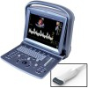 Portable Echograph Chison ECO 5 with Linear Probe 5.3-11.0 MHz: Color Doppler with 12-inch screen